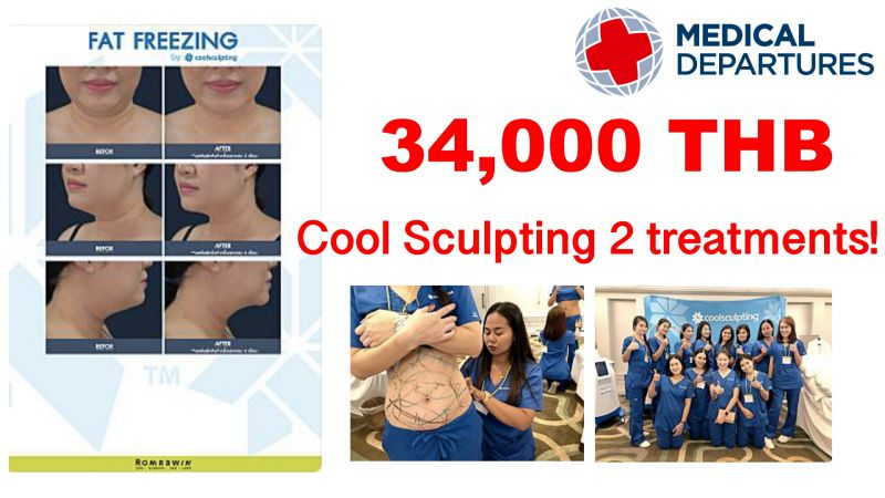 Fat Freezing by Coolsculpting at Romrawin Clinic (Siam Paragon branch)
