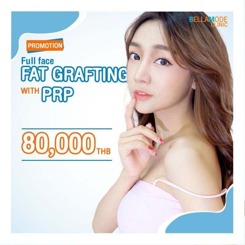 Full Face Fat grafting with PRP
