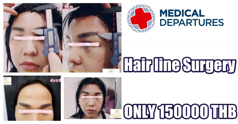 Hair line Surgery Promotion at MILADA COSMETIC SURGERY HOSPITAL