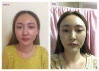 Testimonial from Wang Hong